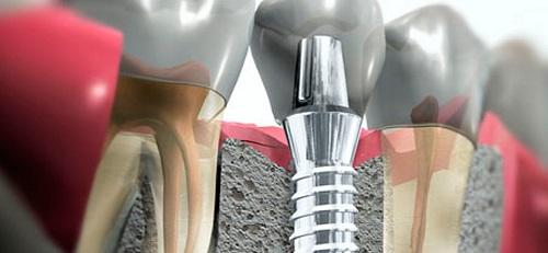 Имплантация зубов, особенности, преимущества